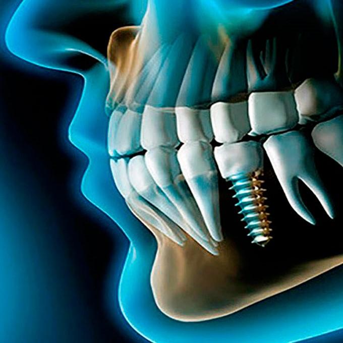 implantes-zaragoza
